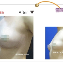 自體豐胸 004-3