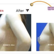 自體豐胸 004-4